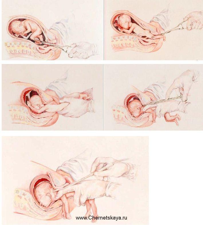 К чему беременной снится выкидыш 83